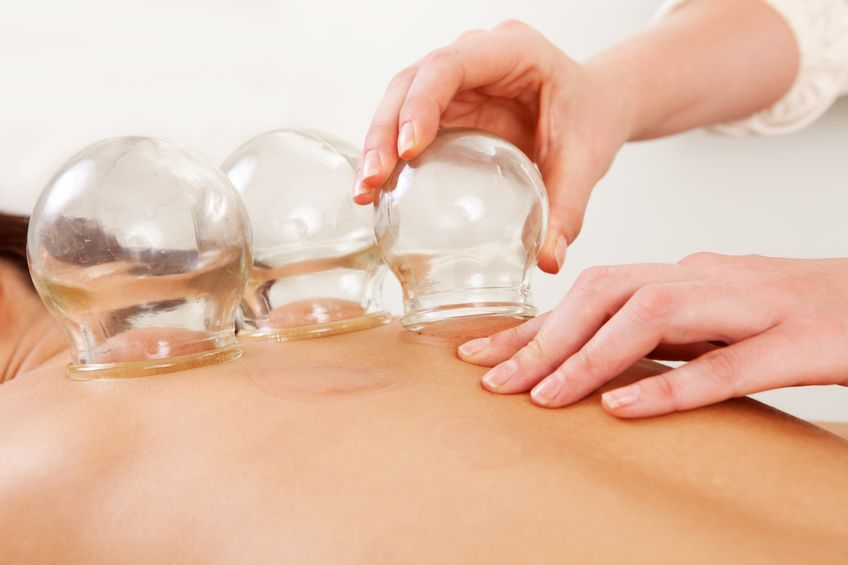Notaro Chiropractic Cupping